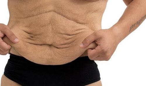 جراحی زیبایی شکم مردان