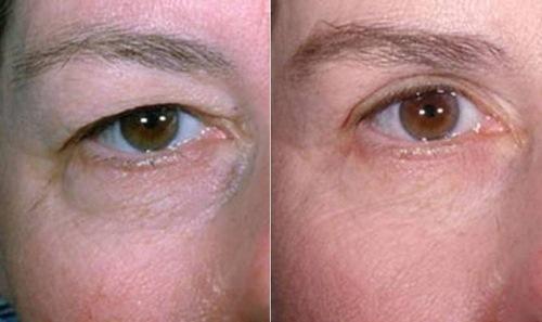 جراحی پلاستیک چشم