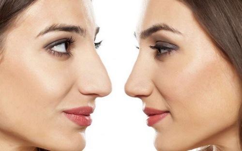 عمل زیبایی بینی برای صورت کشیده