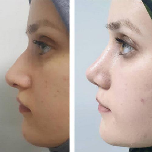 عمل زیبایی بینی به روش بسته