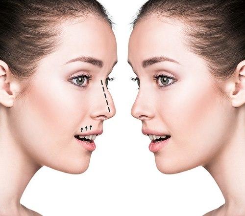 عمل زیبایی بینی سه بعدی