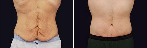 دلایل انجام عمل جراحی زیبایی شکم و پهلو