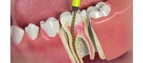 عصب کشی دندان چیست؟