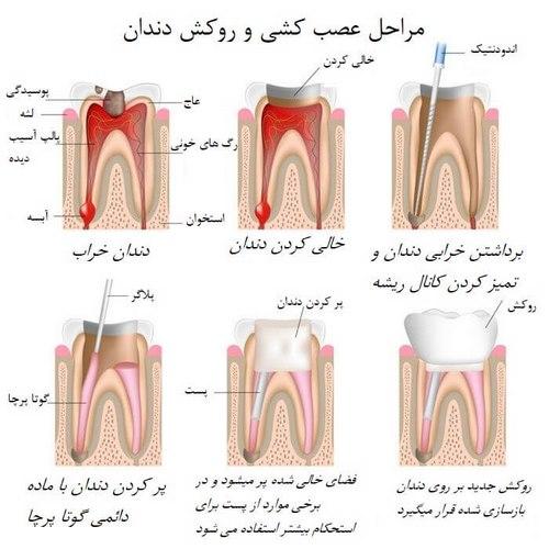 عصب کشی دندان در بارداری