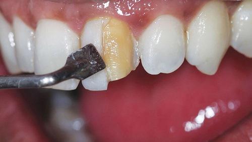 کامپوزیت دندان شکسته