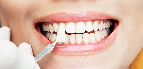 کامپوزیت دندان یا ارتودنسی