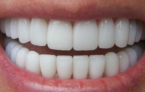 کامپوزیت دندان سرامیکی
