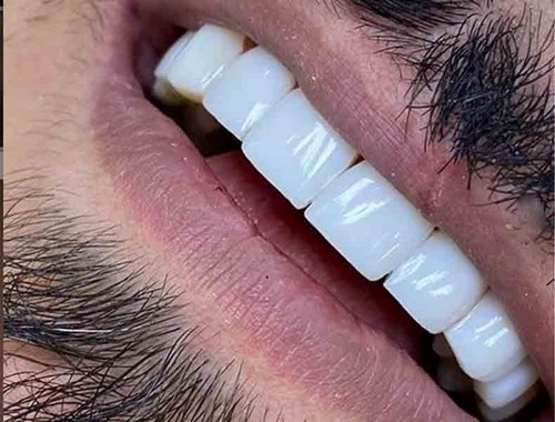 کامپوزیت دندان یا بلیچینگ