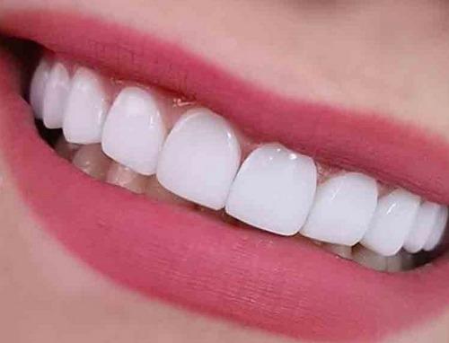 کامپوزیت دندان سوئیسی