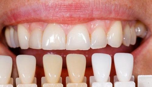کامپوزیت دندان یا لمینت