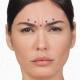 کشیدن پوست پیشانی با جراحی