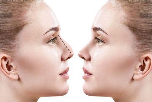 سپتورینوپلاستی بینی چیست
