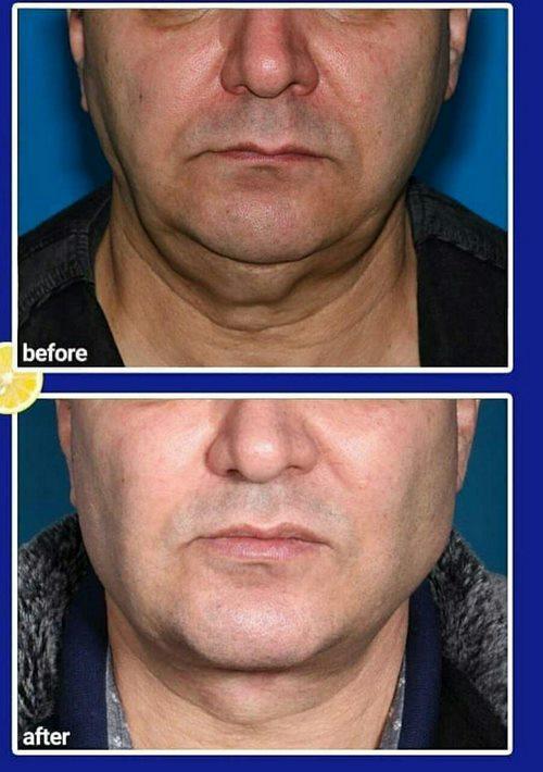کشیدن پوست صورت با جراحی