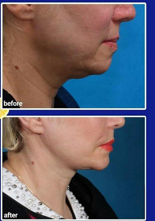 کشیدن پوست صورت با نخ جذبی پروتئینی