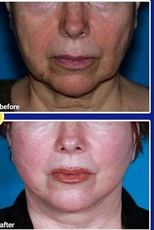 کشیدن پوست صورت بدون عمل جراحی