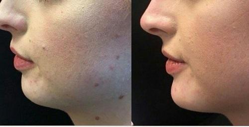 هزینه عمل کشیدن پوست صورت