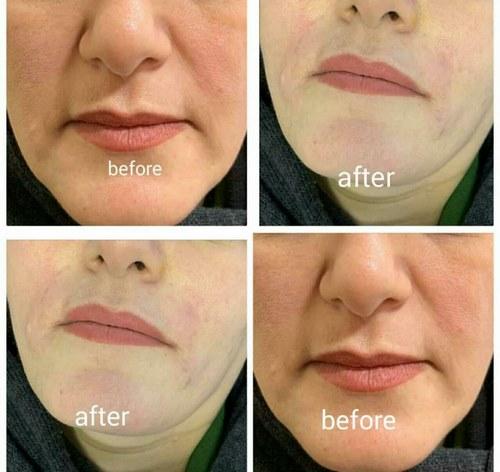 عمل کشیدن پوست صورت