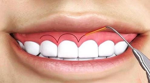 جراحی زیبایی دندان