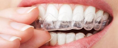 سوالات متداول درباره ی جراحی زیبایی دندان