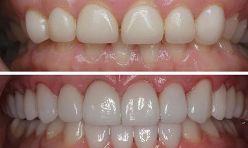 جراحی های زیبایی دندان