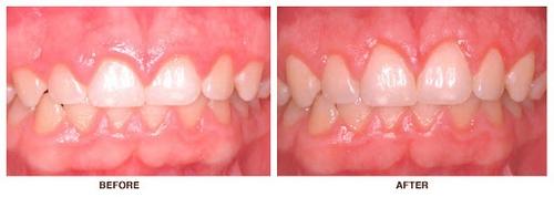 جراحی زیبایی دندان نیش