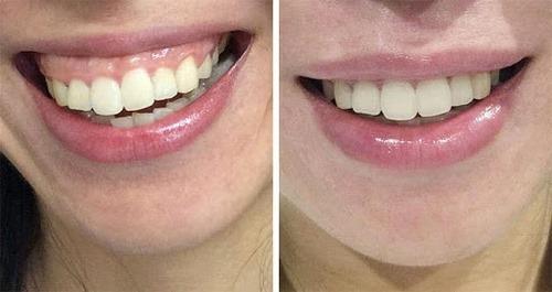 جراحی زیبایی دندان جلو