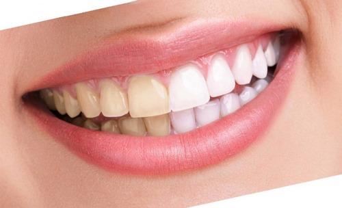 جراحی زیبایی دندان چیست