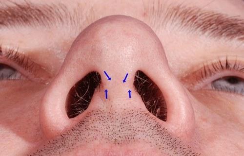 پماد تتراسایکلین برای بخیه بینی