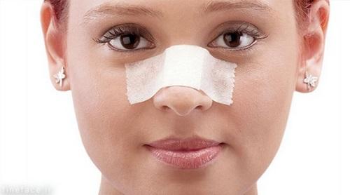 سوهان کشیدن بینی بعد عمل