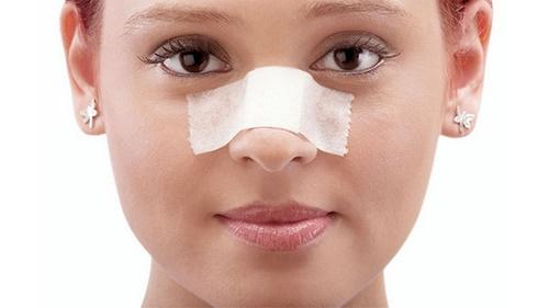 عکس های جراحی بینی بدون گچ گرفتن