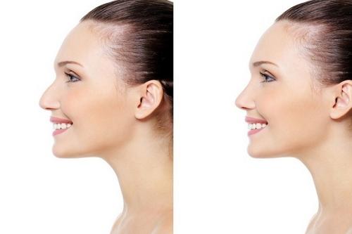 تاثیر سینوزیت در عمل زیبایی بینی