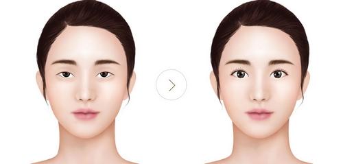 عمل زیبایی صورت با لیزر