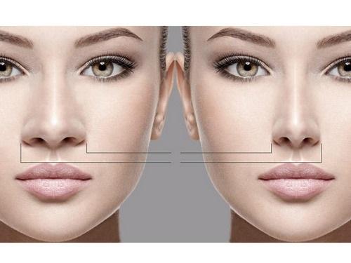 انواع جراحی های بینی