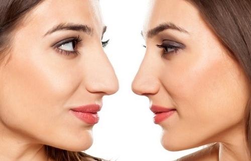 انواع عمل های بینی