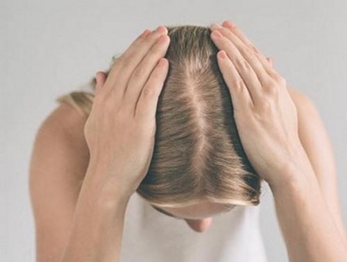درمان شوره مو