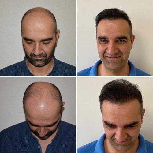 بهترین کلینیک های کاشت مو در مشهد