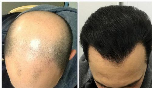 قیمت عمل بهترین دکتر کاشت مو در مشهد