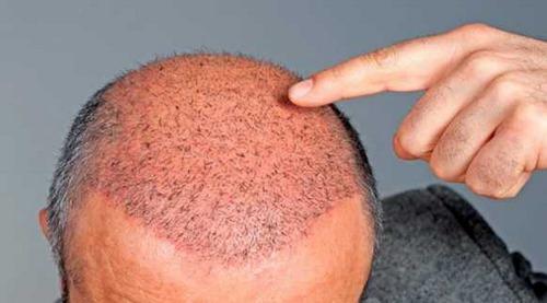 آدرس بهترین کلینیک کاشت مو در مشهد